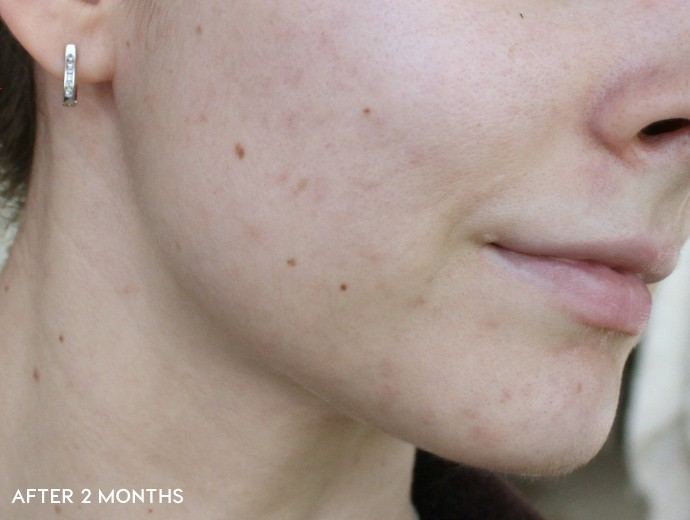 before and after korean skincare routine, acne prone skin, how to fade scars